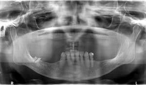 Dental Implant surgical photos