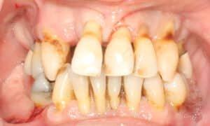 Dental Implant before
