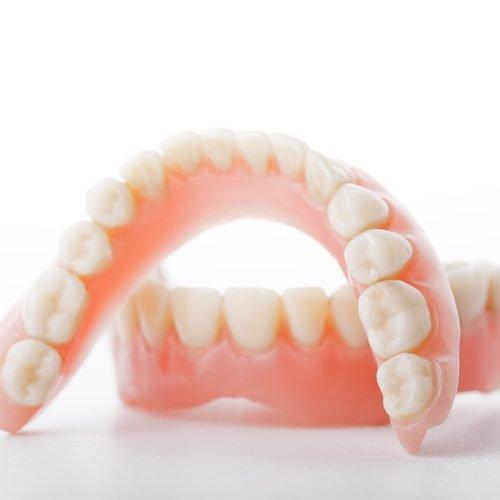 Denture Implants vs Dentures