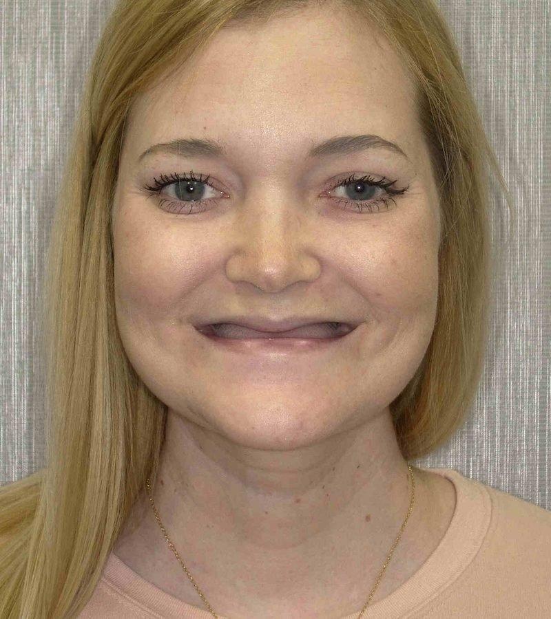 Before Zygomatic Implant