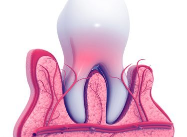Tooth Extraction Before Dental Implant Surgery